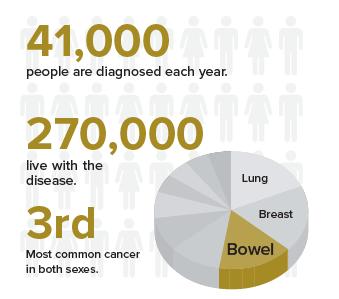 Bowel Cancer Graphic