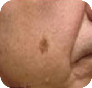 Skin Cancer Example